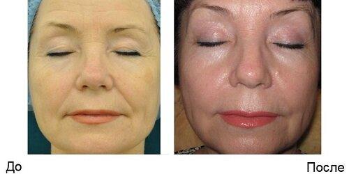 Фото до и после плазмолифтинга лица