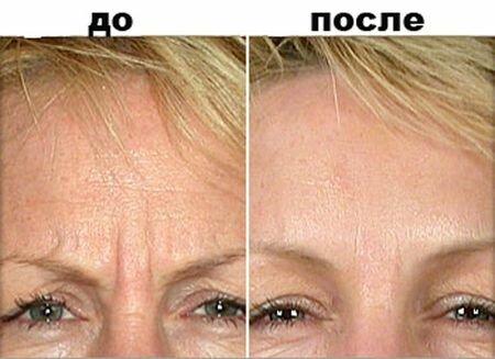 фото до и после инъекции диспорта