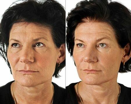 безинъекционная биоревитализация Фото до и после