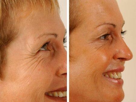 фото до и после инъекции ботокса