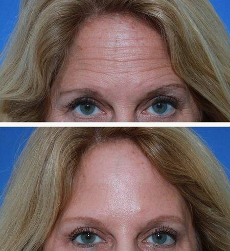 фото до и после инъекции ксеомина