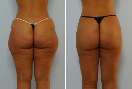 озонотерапия  фото до и после