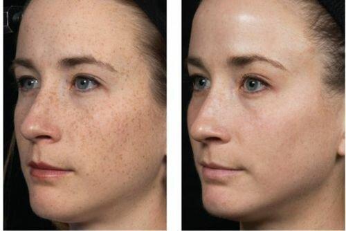 фото до и после процедуры Fraxel