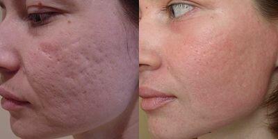 фото до и после омоложения