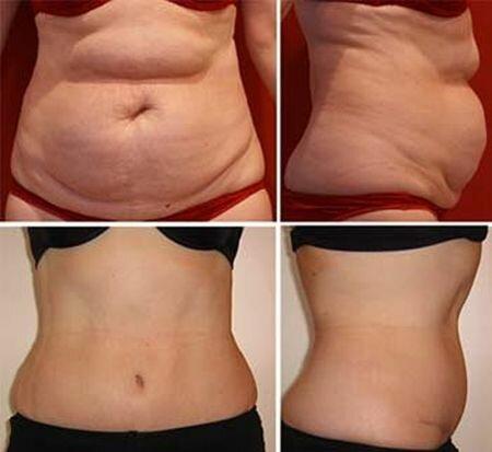 Фото до и после озонотерапии для похудения