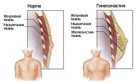 увеличение молочной железы