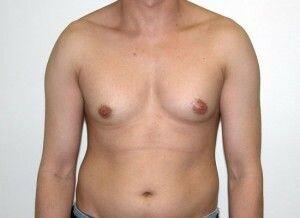 увеличены молочные железы у мужчины