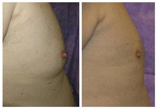 Фото до и после операции по гинекомастии