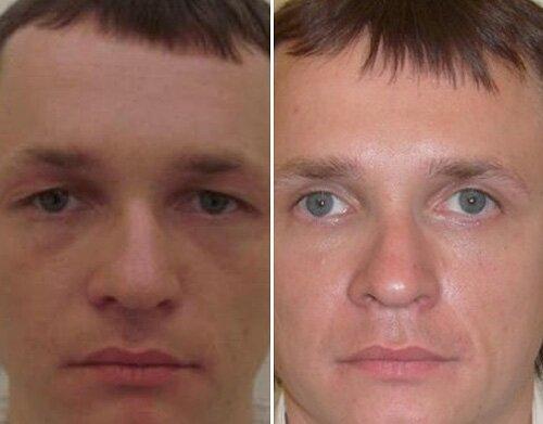 Блефаропластика нижних век фото до и после операции