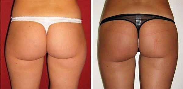 фото до и после кавитации