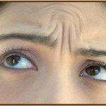 вертикальные морщины под глазами
