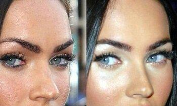 Меган до и после пластической операции носа