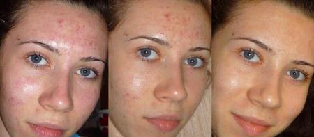 чисткой  лица фото до и после