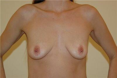 отвисшая грудь