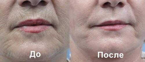 Фотографии до и после озонотерапии для лица