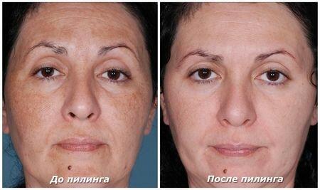 фото до и после - пилинг лица