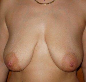 отвисание груди