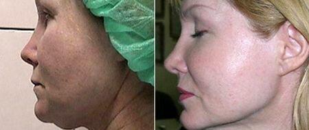 фото до и после подтяжки лица мезонитями