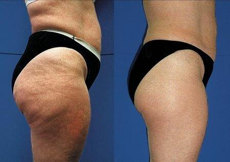 прессотерапия фото до и после