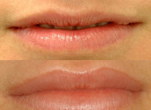 ботокс вокруг губ