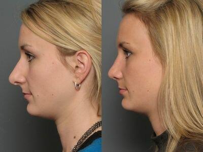 длинный нос до и после