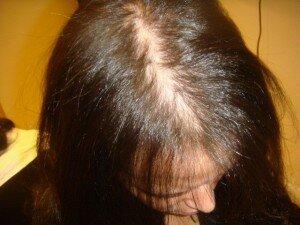 волосы до лечения