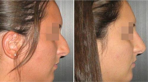 безоперационная ринопластика фото до и после