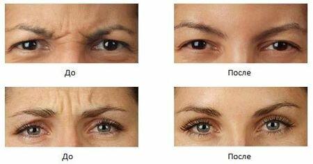 Фотографии до и после инъекций ботокса