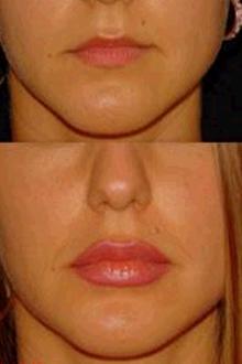 до и после ботокса фото