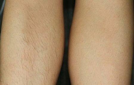 Фото до и после диодной эпиляции