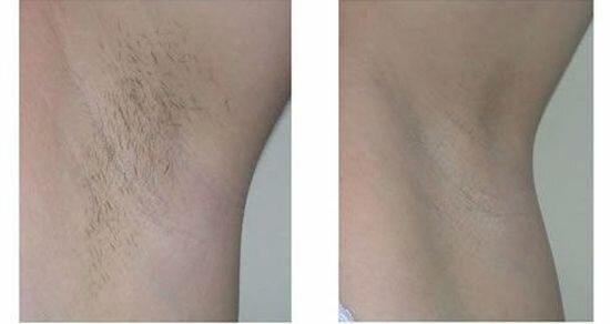 фото до и после элос эпиляции
