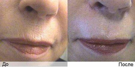 Фото до и после элос эпиляции верхней губы