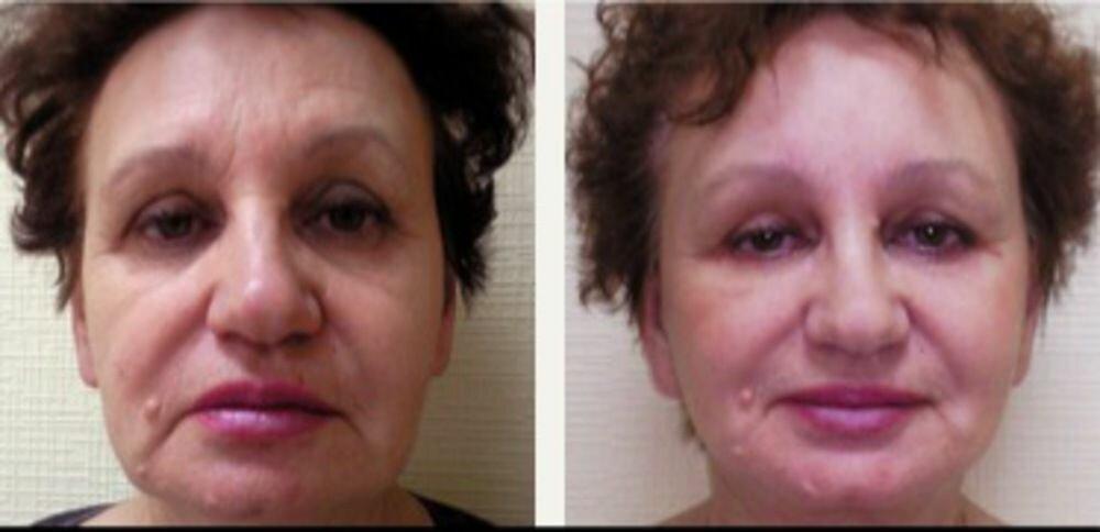 Фото до и после фейслилифтинга
