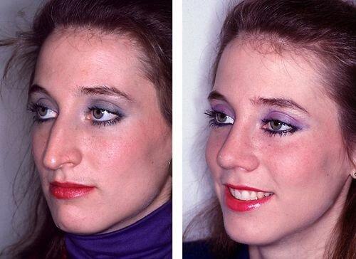 пластика носа - фото до и после