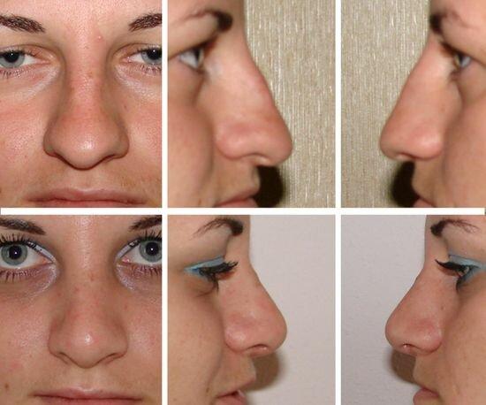 ринопластика кончика носа - фото до и после