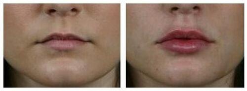 Фото до и после увеличения губ методом электропорации