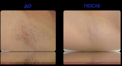 Фото до и после эпиляции Александритовым лазером
