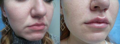 фото до и после увеличения губ гиалуроновой кислотой