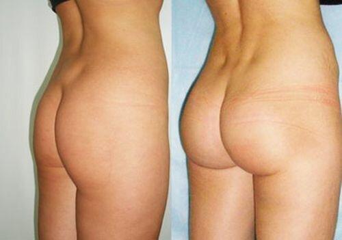 Фото до и после глютеопластики