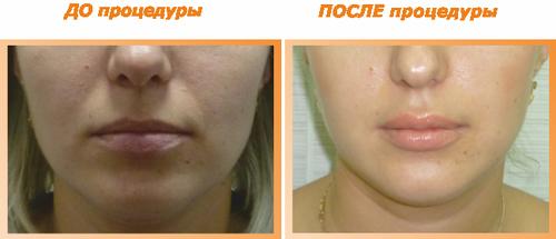 Фото до и после увеличения губ липофилингом