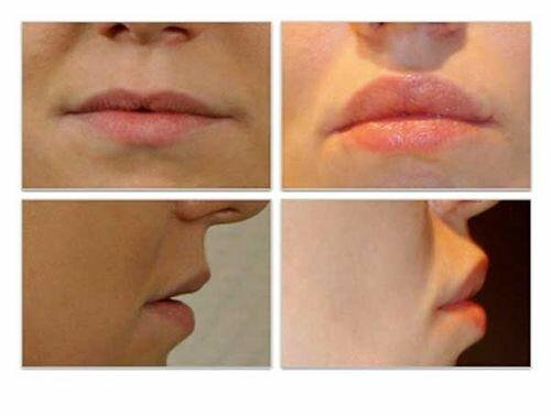 Фото до и после увеличения губ хейлопластикой