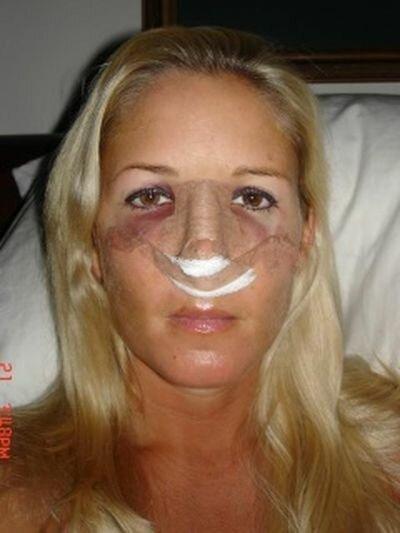 Фото сразу после операции