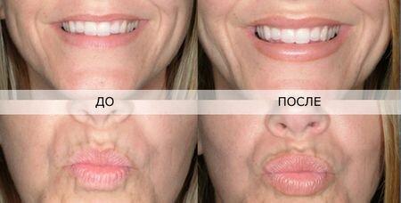 Фотографии до и после инъекций ботокса в губы