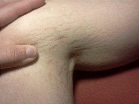 Фото растяжек на теле