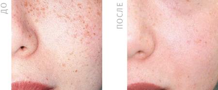 Фото до и после удаления пигментных пятен на лице фотовспышкой