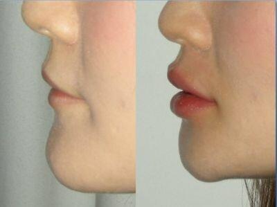 фото до и после процедур гиалуроновой кислотой