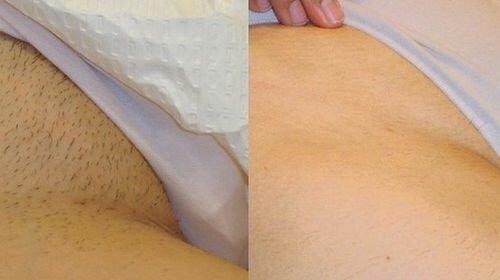 фото до и после эпиляции глубокого бикини