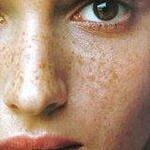 удаление пигментных пятен на лице фотовспышкой