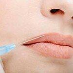 инъекции гиалуроновой кислоты в губы