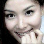 пластика век азиатских глаз